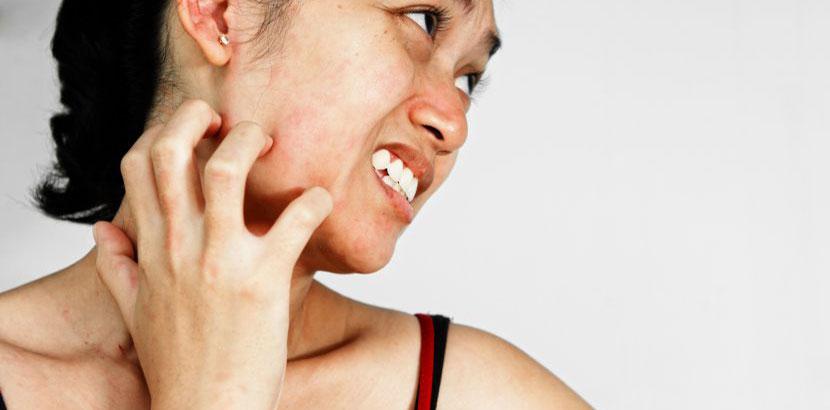 Junge Frau mit Krätze, die sich den Hals kratzt.