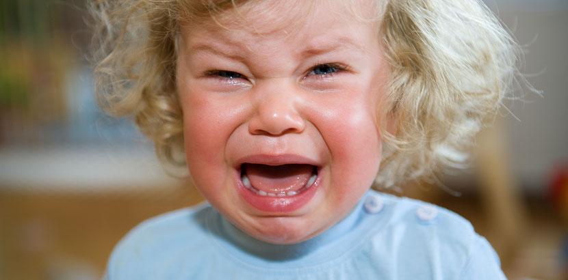 Kleines Mädchen mit Mumps, das vor Schmerzen weint. Mumps Symptome.