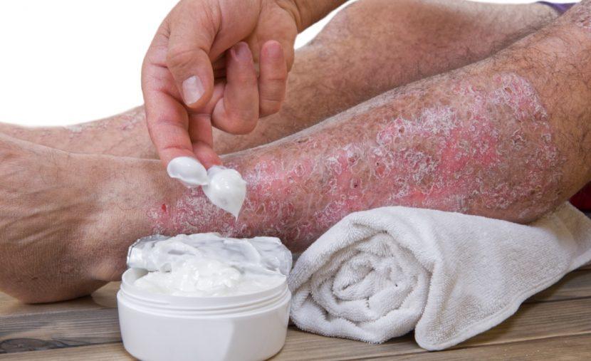 Psoriasis Schuppenflechte Therapie