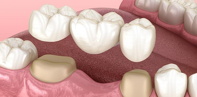 Zahnbrücke