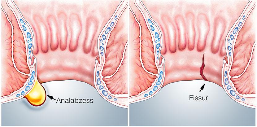 Grafische Darstellung eines Analabszesses (links) und einer Analfissur (rechts). Analfissur Heilung und OP.