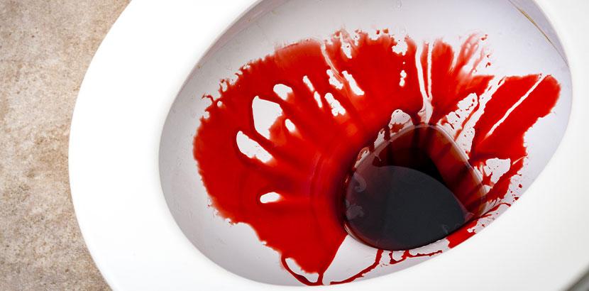 Hellrotes Blut im Toilettenbecken als Symptom einer akuten Analfissur.