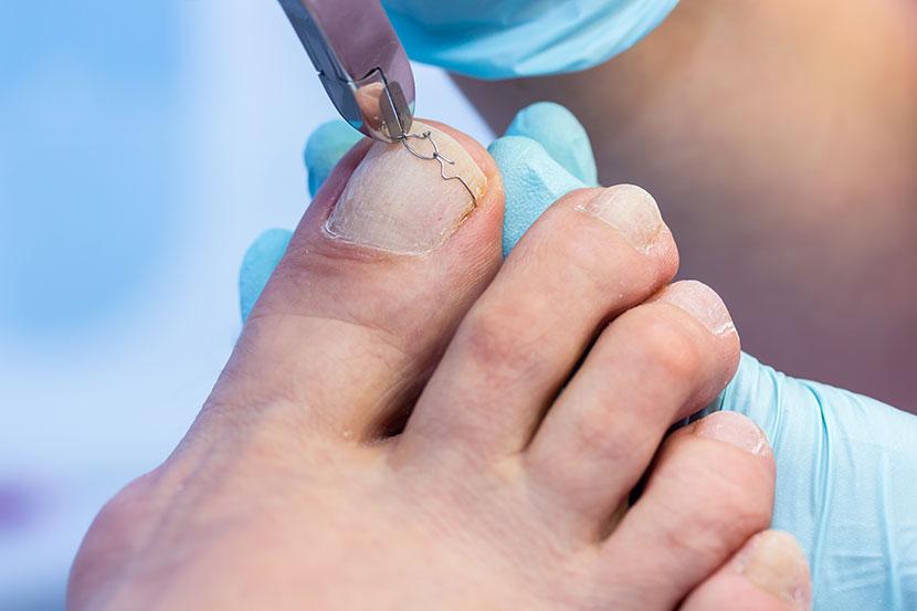Ein Fußpfleger setzt eine Nagelkorrekturspange auf einen Zehennagel.