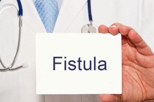 Fistel