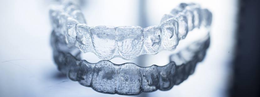 Modell einer unsichtbaren Zahnspange. Invisalign Wien Kosten.