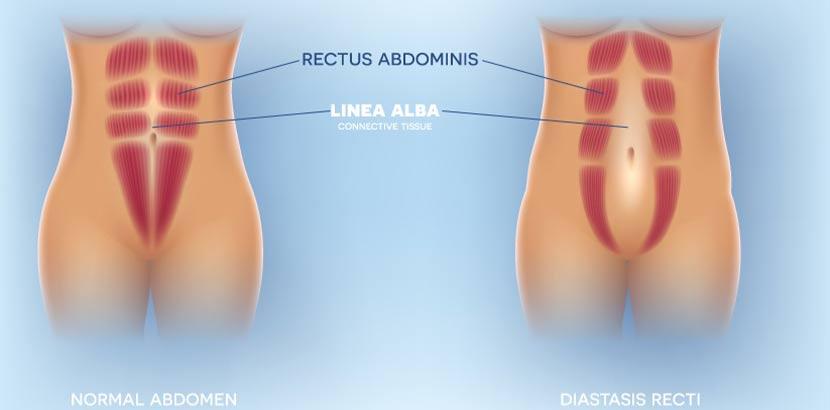 Medizinische Grafik, die links ein normales Abdomen zeigt und rechts ein Abdomen mit auseinandergewichenen geraden Bauchmuskeln (Rektusdiastase).