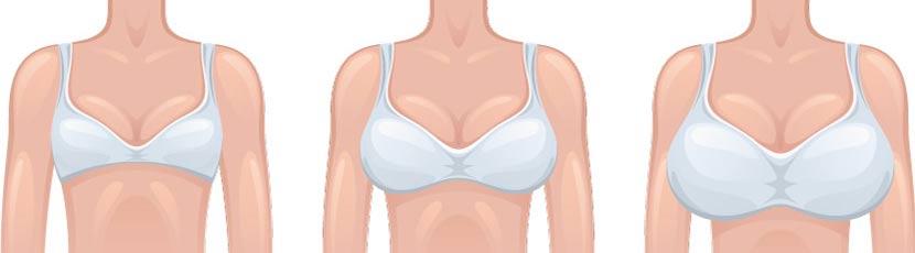 Grafische Darstellung von Frauen mit verschiedenen Brustgrößen. Brustverkleinerung Preise Österreich