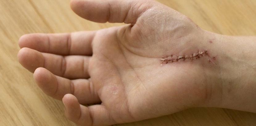 Hand mit einer Narbe von einer Karpaltunnelsyndrom Operation.