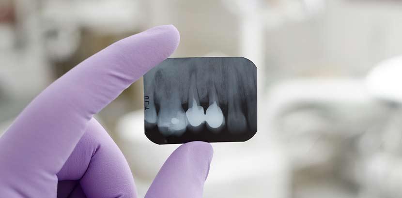 Zahnarzt Krankenkasse Kostenerstattung: Geld zurück nach Zahn-Behandlung