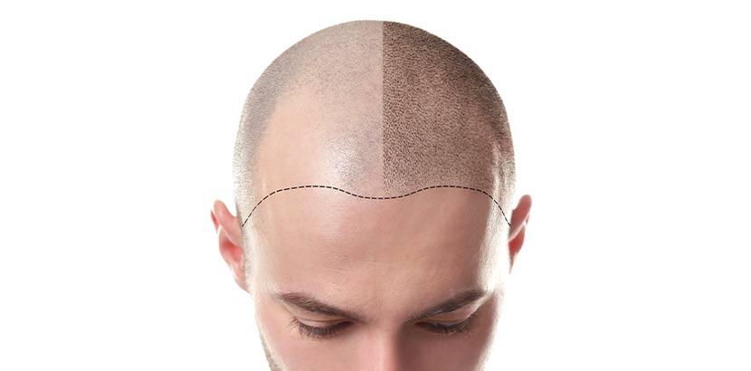 Junger Mann direkt nach einer Haartransplantation. Vorher - nachher Bild.