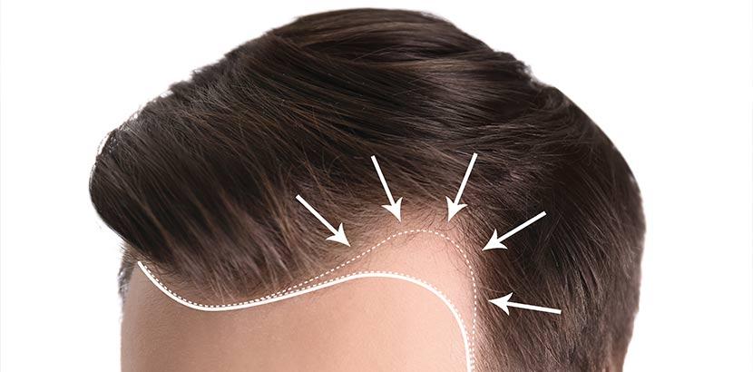 Haartransplantation geheimratsecken kosten deutschland