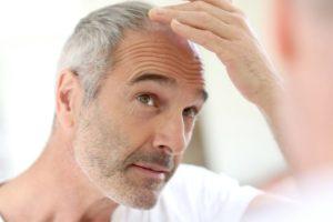 Mittelalter Mann, der im Spiegel besorgt seinen Haaransatz betrachtet und über eine Haartransplantation nachdenkt.