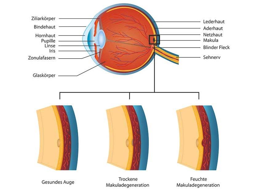 Makuladegeneration Infografik