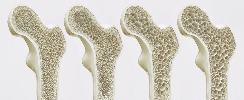 die vier Stadien der Osteoporose
