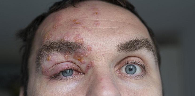 Gürtelrose im Gesicht auf der Stirn eines Mannes.
