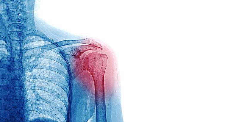 Was tun bei Kalkschulter? Behandlung der Schulterschmerzen