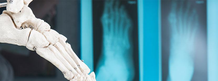 Röntgenaufnahmen von einem Fuß, Modell von einem Fuß im Vodergrund. Orthopäde Wien.