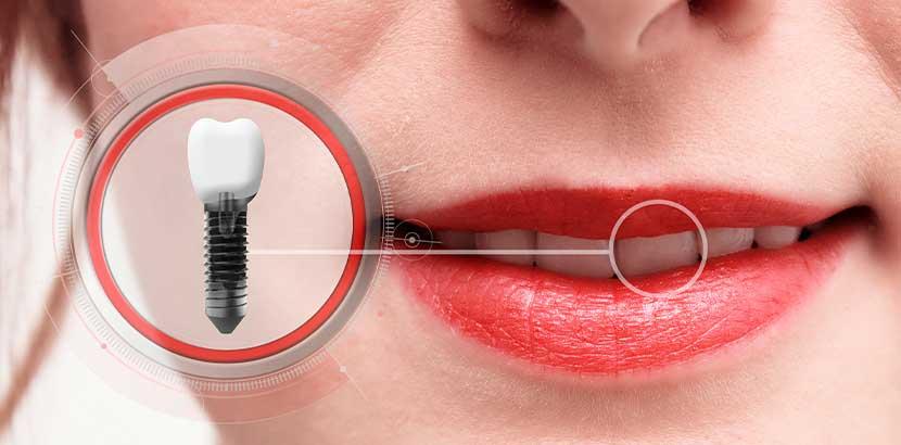 Hübscher Frauenmund, in den ein Implantat eingepasst wird.