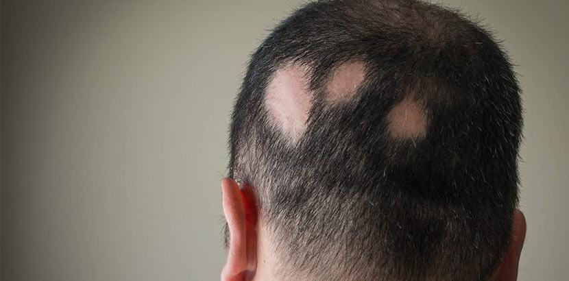 Mann mit drei kahlen Stellen aufgrund kreisrunden Haarausfalls