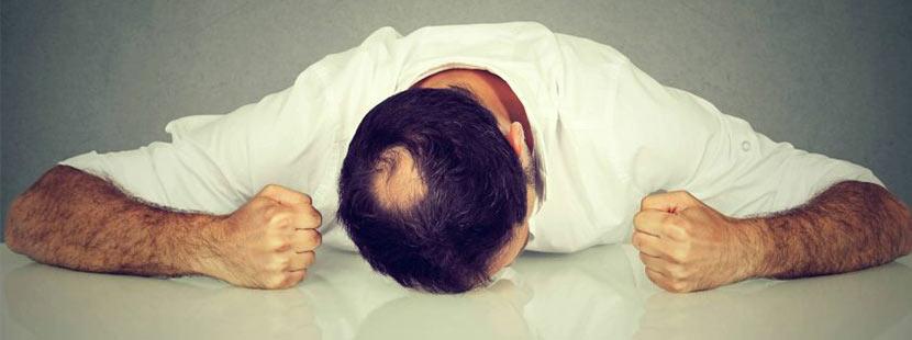 Mann mir kreisrundem Haarausfall niedergeschlagen
