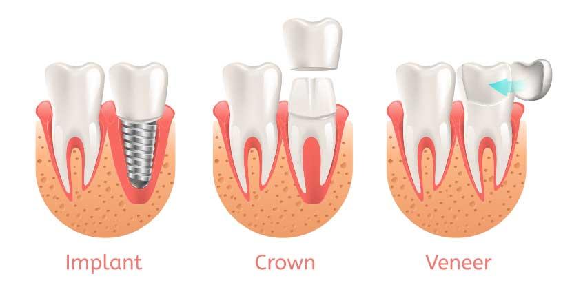 Grafik, die den Unterschied zwischen einem Implantat, einer Krone und einem Veneer veranschaulicht.