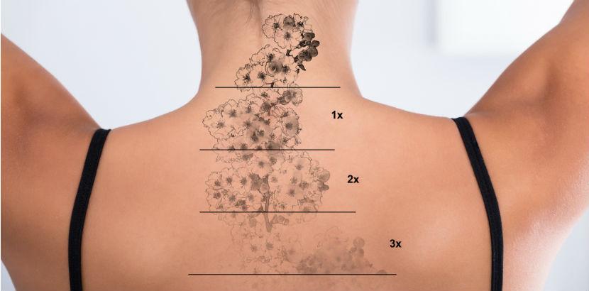 Cover Up Tattoo: Schematische Ansicht, wie Tattoo durch Laserbehandlung entfernt wird.