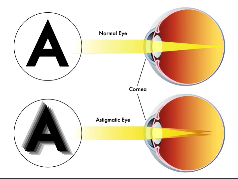 Schematische Darstellung eines gesunden und eines astigmatischen Auges.