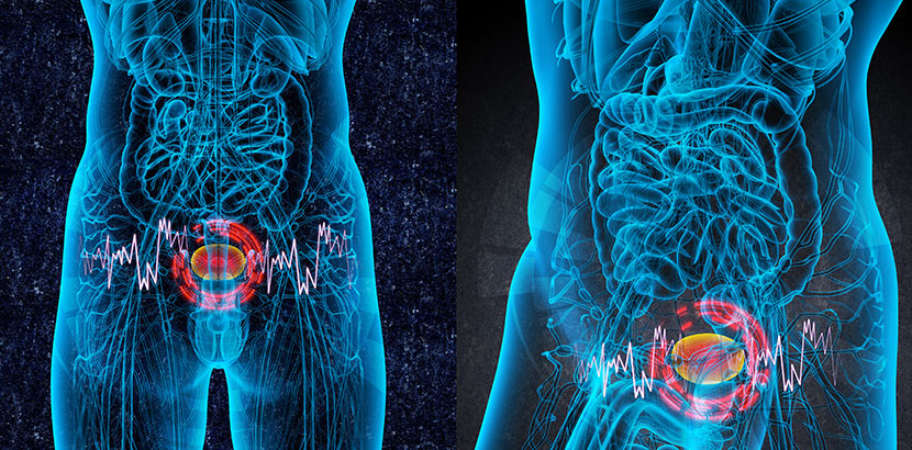 Blasenkrebs 3D-Darstellung
