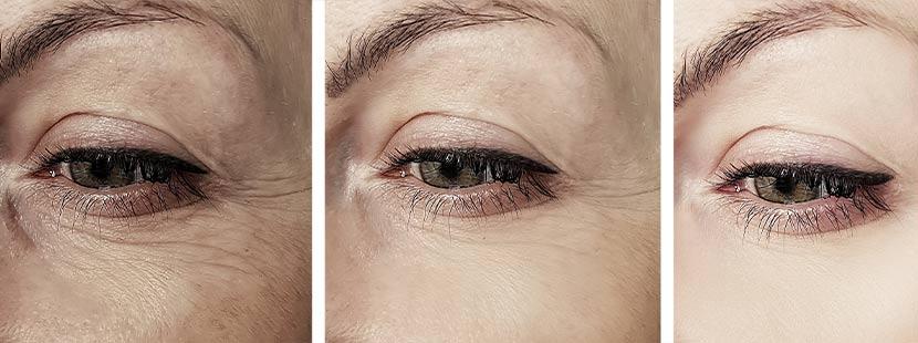 Weibliche Augenpartie vor und nach dem Facelift Wien.