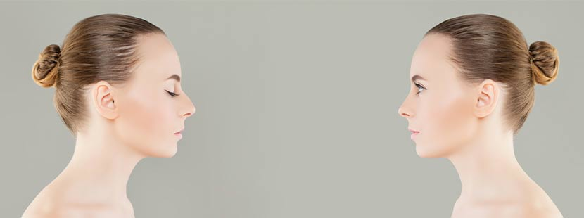 Junge Frau vor und nach der Nasenkorrektur Wien.