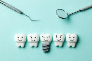 Vier normale Zähne und ein Implantat vor türkisem Hintergrund. Zahnimplantat Wien Kosten.