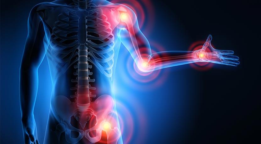 Rheuma Symptome - Rheumaschmerzpunkte