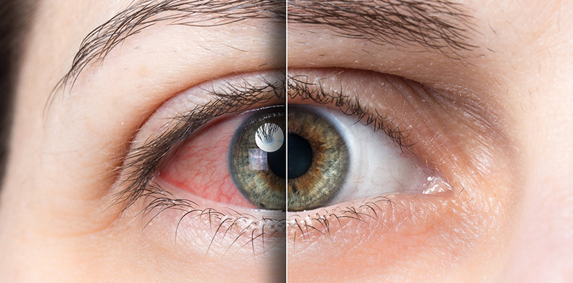 Ein Auge, das in der Mitte durch eine Linie aufgeteilt wird. Rechts davon ist es gesund, links davon gerötet. Augenarzt Graz.