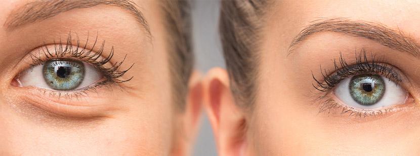 Zwei Augen, die zu unterschiedlichen Gesichtern gehören. Das linke Auge hat Falten, das rechte nicht. Augenarzt Linz.