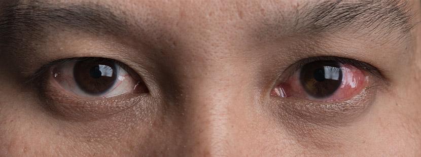 Eine Nahaufnahme der Augen eines Mannes, das rechte Auge ist stark gerötet. Augenarzt Linz.