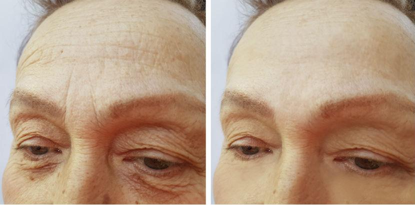 Botox Wien