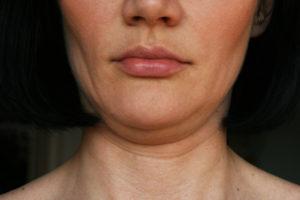 Doppelkinn loswerden: eine Frau mit Doppelkinn