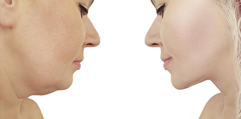 Doppelkinn loswerden durch Halsstraffung oder Fettabsaugung: Vorher-Nachher-Bild