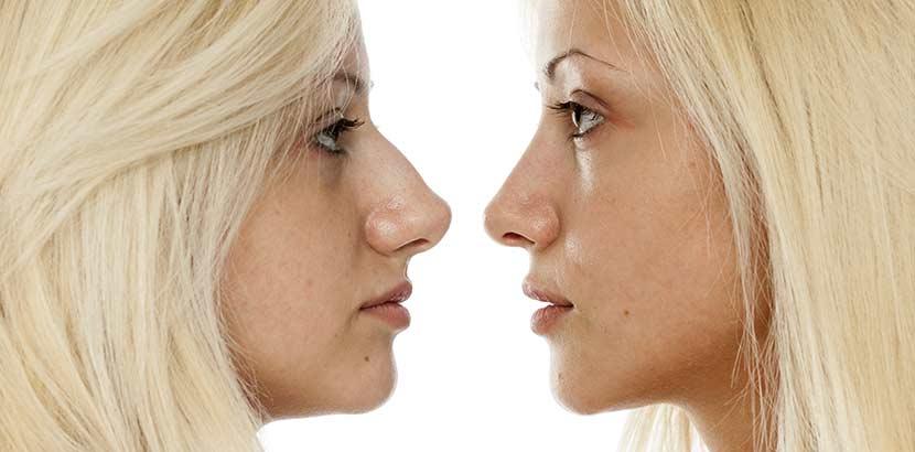 Junge blonde Frau vor und nach ihrer Nasenkorrektur Wien.