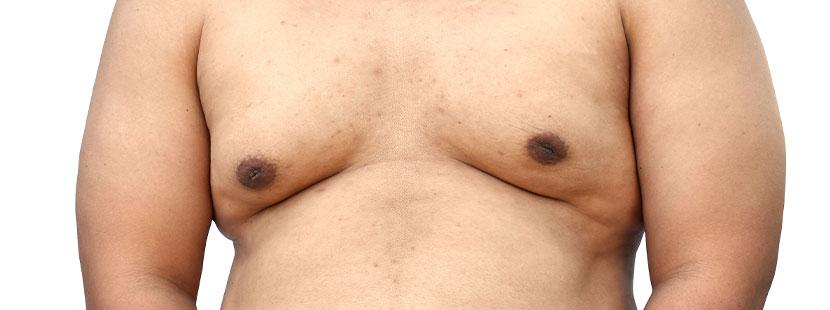 Übergewichtiger Mann mit Männerbrüsten (Man Boobs). Fettabsaugung Wien Kosten.