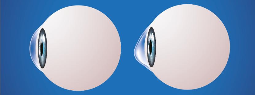 Abbildung des Augapfels mit einer Hornhautvorwölbung.