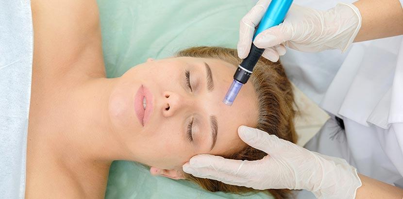 Frau erhält Mesotherapie auf Stirn in Wien