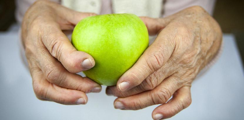 Hände einer älteren Frau mit rheumatoider Arthritis, die einen grünen Apfel halten. Rheumatologe Wien.
