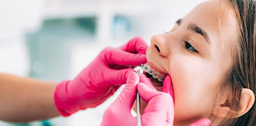 Dunkelhaariges Mädchen mit gratis Zahnspange bei der kieferorthopädischen Kontrolle.