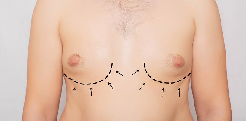 Ein Mann mit vergrößerter Brust, auf der Markierungen für eine OP sind.