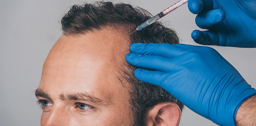 Mann mit starken Geheimratsecken, der eine Eigenbluttherapie beim Hautarzt Graz durchführen lässt.