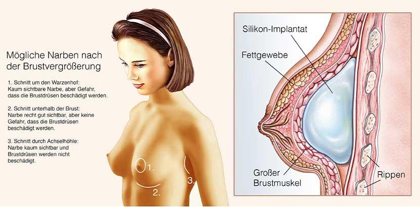 Grafik, die die Narbenbildung nach der Brustvergrößerung verdeutlicht. Brustvergrößerung Kosten Wien.