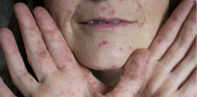 Hand Fuß Mund Krankheit