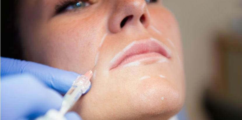 Hyaluronsäure: eine junge Frau lässt ihre Nasolabialfalten behandeln