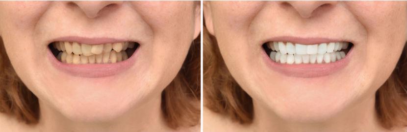Kieferorthopäde: Vorher-nachher-Bild nach Zahnregulierung
